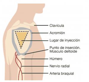 Inyeccion en deltoides