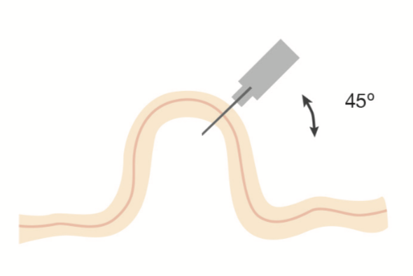 Angulo inyección subcutánea